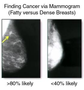 DenseBreastMammogram
